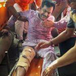 उत्तर प्रदेश : लखीमपुर से BJP विधायक योगेश वर्मा को अज्ञात हमलावरों ने मारी गोली